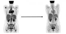 PET lymphoma scan