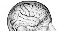 Temozolomide brain cancer