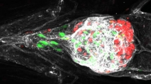 Fluorescent melanoma cells in zebrafish - image from Dr Claudia Wellbrock, University of Manchester